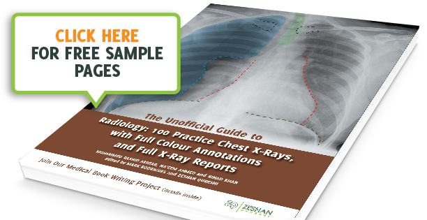 The Unoffical Guide To Radiology: 100 Chest XRays - Download Preview image two