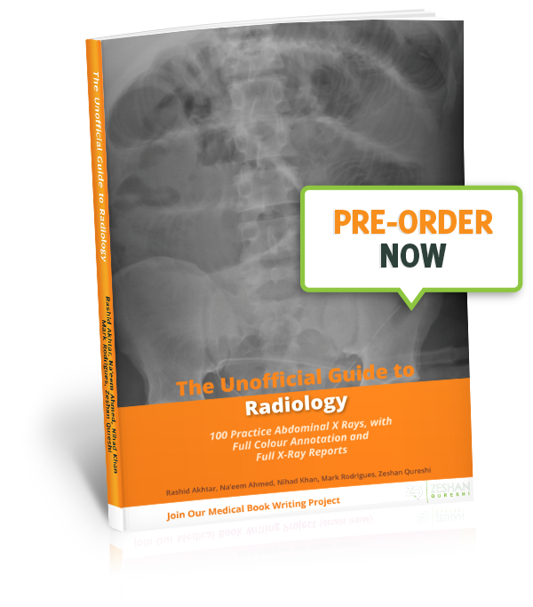 The Unofficial Guide to Medicine - Unoffical Guide To Radiology - 100 Practice Abdominal X-Rays Pre-Order Now