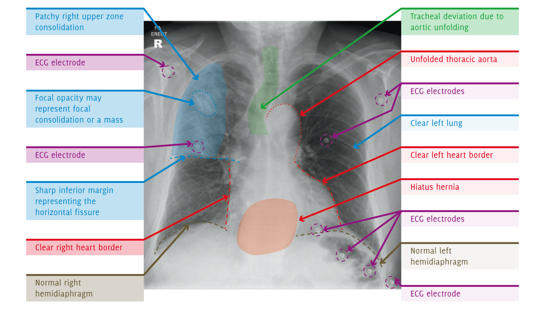 Annotated X-Ray image
