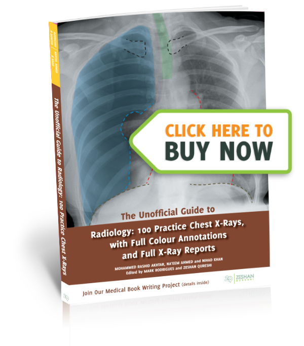 The Unoffical Guide To Radiology - Buy Now image