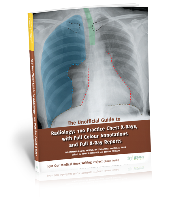 Unofficial Guide to Radiology: 100 Practice Chest X-rays book