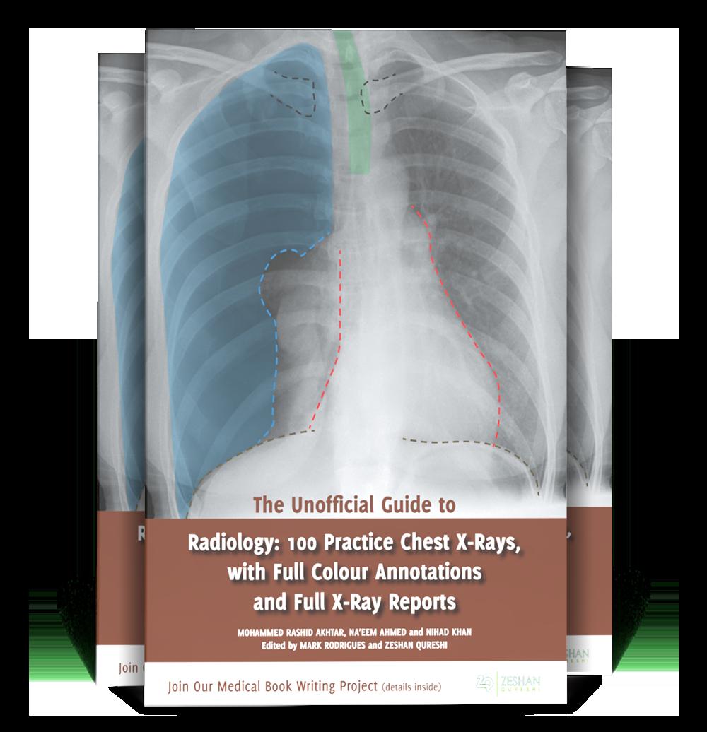 UGT Radiology 100 CXR