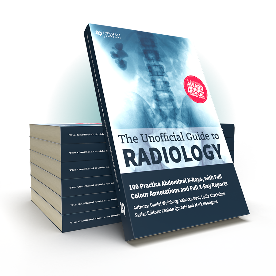 Unofficial Guide to Radiology 100 AXR