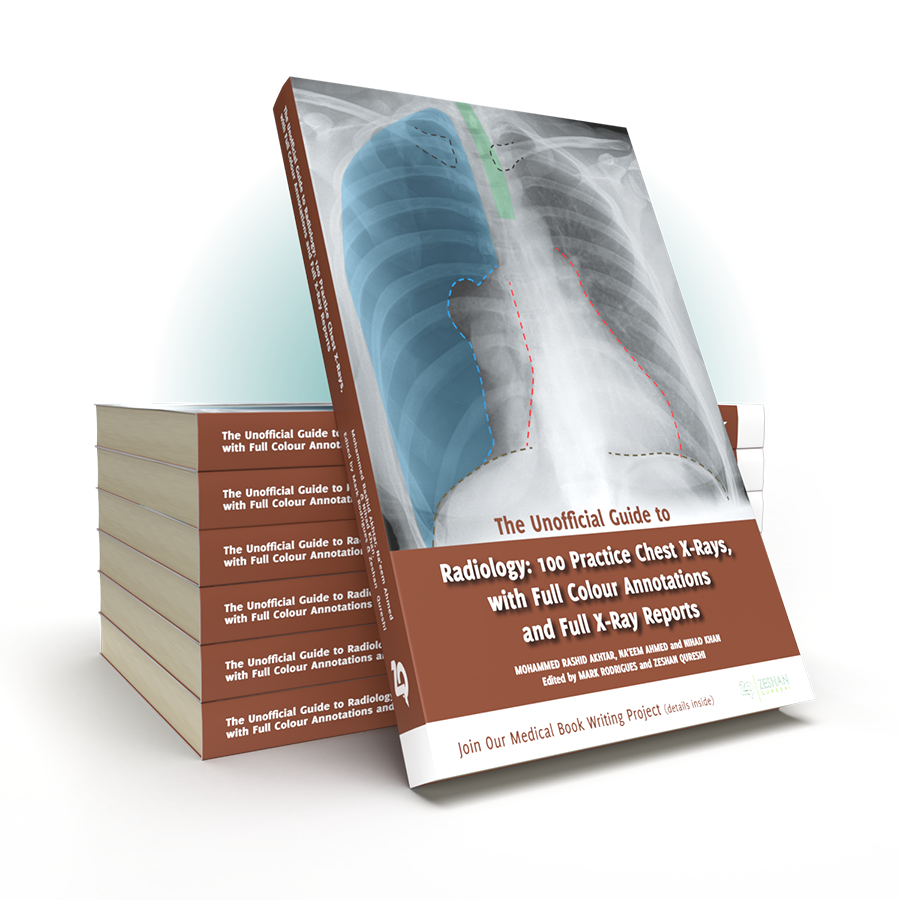 Unoffiical Guide to Radiology 100 CXR